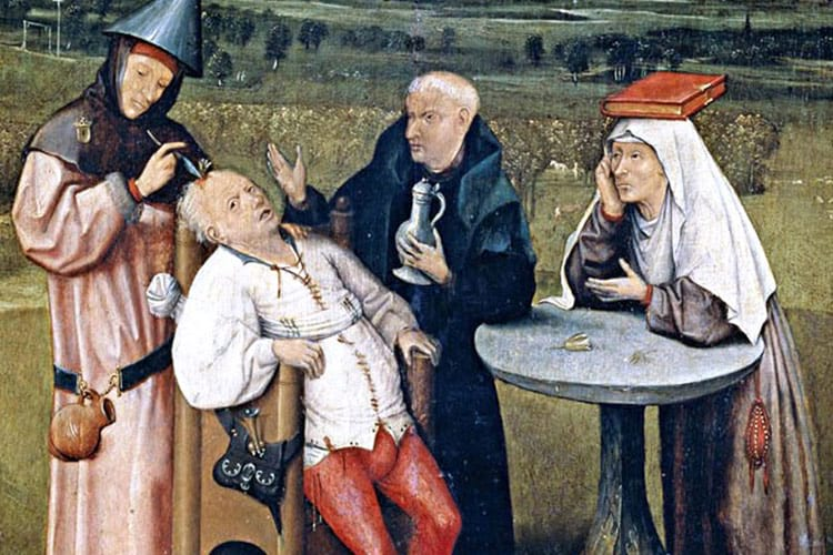 A painting depicting trepanation.