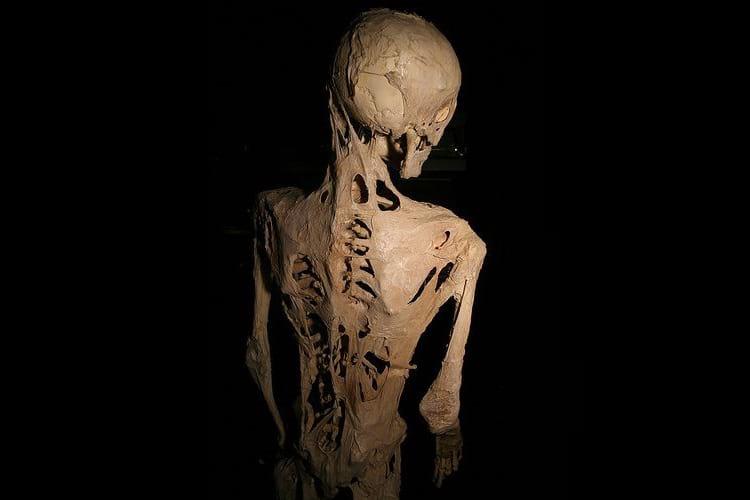 Stone Man Syndrome or Fibrodysplasia ossificans progressiva