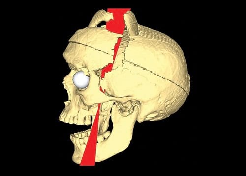 A 3D reconstruct of Gage's skull
