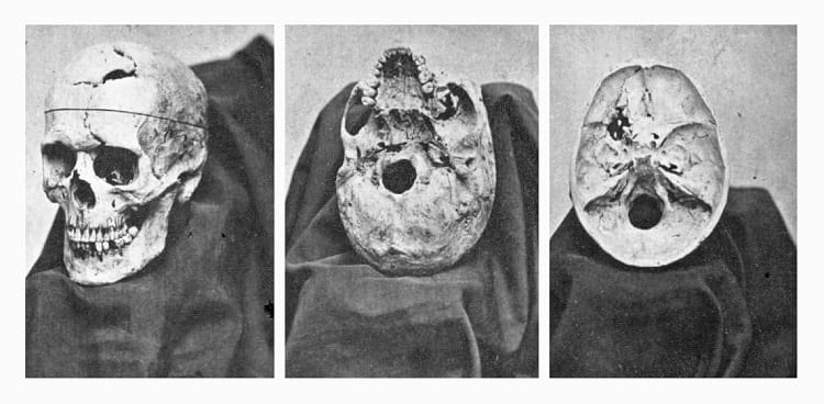 Multiple views of the skull of Phineas Gage
