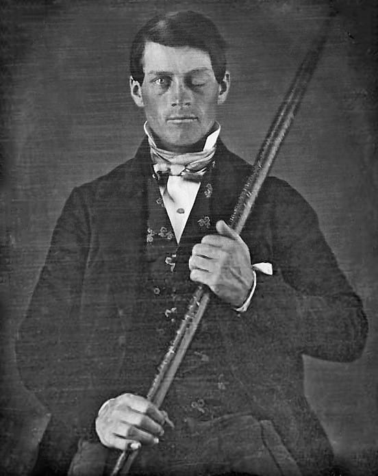 Phineas Gage with the iron rod that pierced his skull.