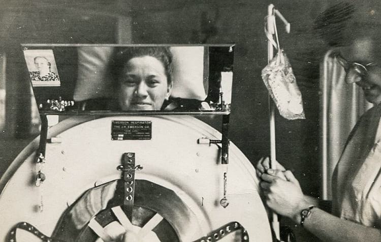 Mirror in the iron lung.