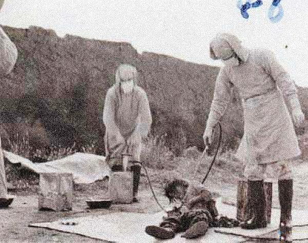 An unidentified victim of Unit 731.