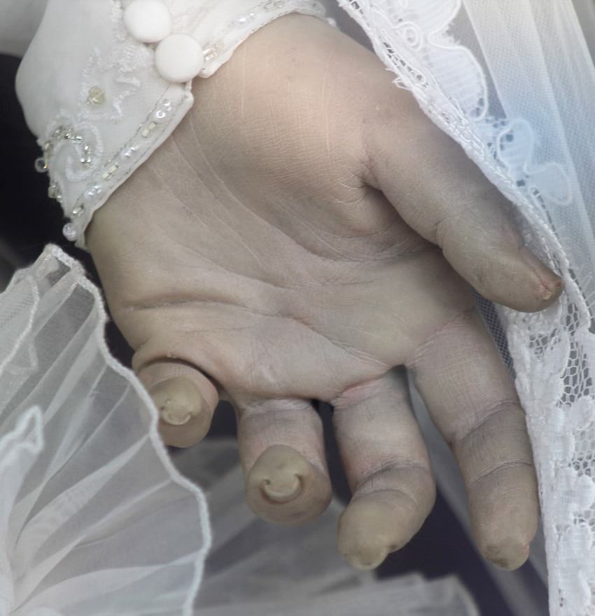 Close up photo of La Pascualita's hand.