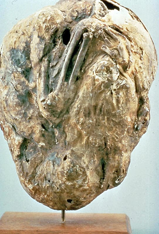 A calcified fetus.